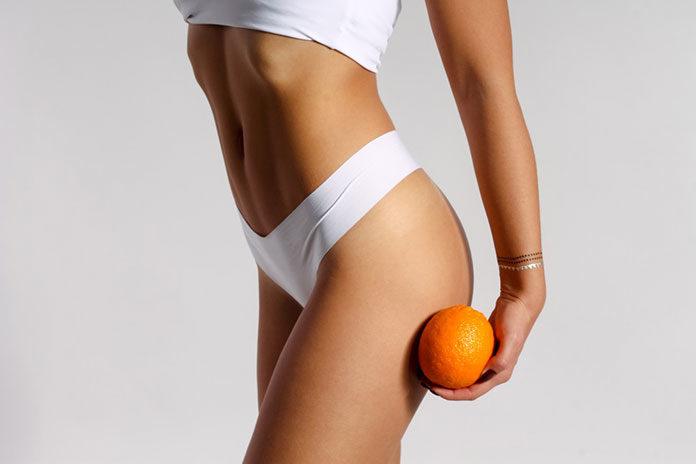 Usuwanie cellulitu - nie czekaj z tym do lata!